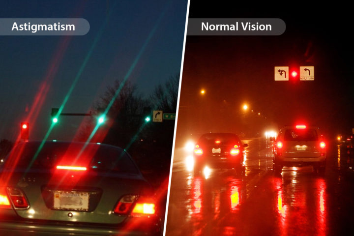 What is Astigmatism and How Could You Fix It?