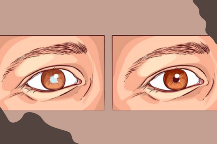 How To Identify And Treat Cataracts